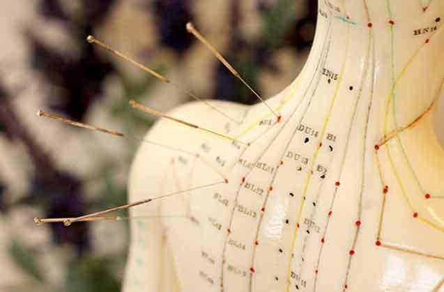 Akupunktur Güvenli Bir Tedavi Metodu Mudur?