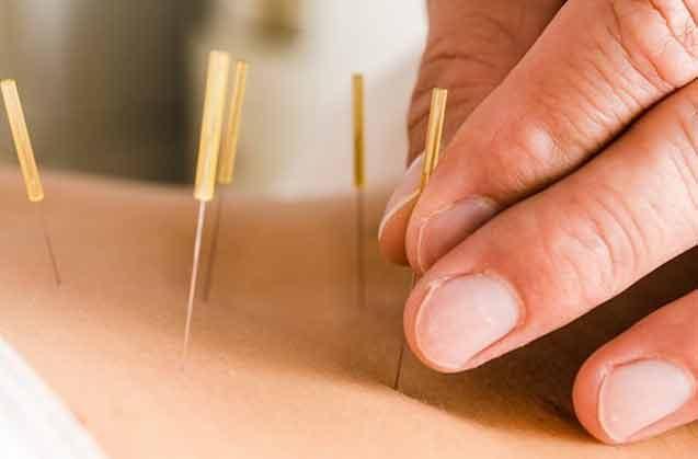 Akupunktur İğnesi Acı Verir Mi?