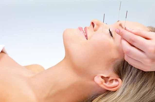 Akupunktur İle Gençleşmek İster Misiniz?